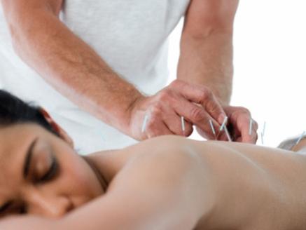 acupuntura-hg-17.11.2009